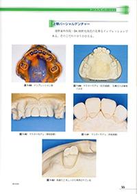 当院の入れ歯(義歯)治療の特徴