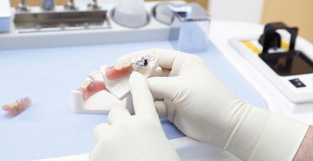 歯を失った時の治療なら増野歯科医院におまかせください