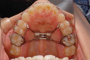 大人(永久歯列)の方も「なるべく歯を抜かない」矯正を行います